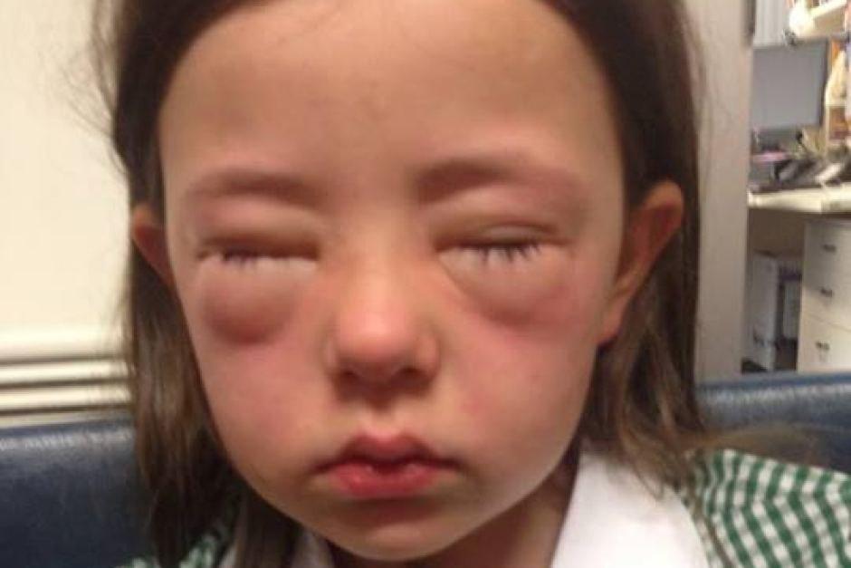 Allergi 225 S Rosszul Lett De Mit Kell Tenni Allergia 233 S